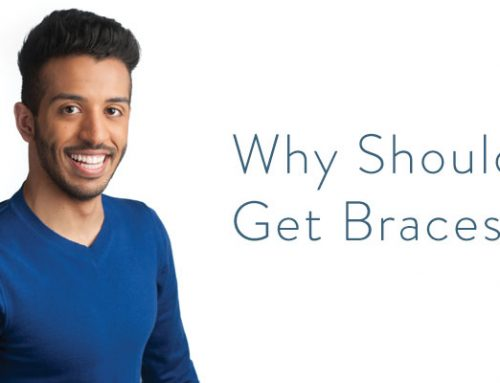 Why Should I Get Damon Braces?