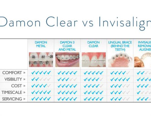 Damon Clear vs. Invisalign